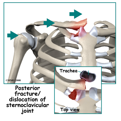 Sternoclavicular Joint Dislocation Image Search Results