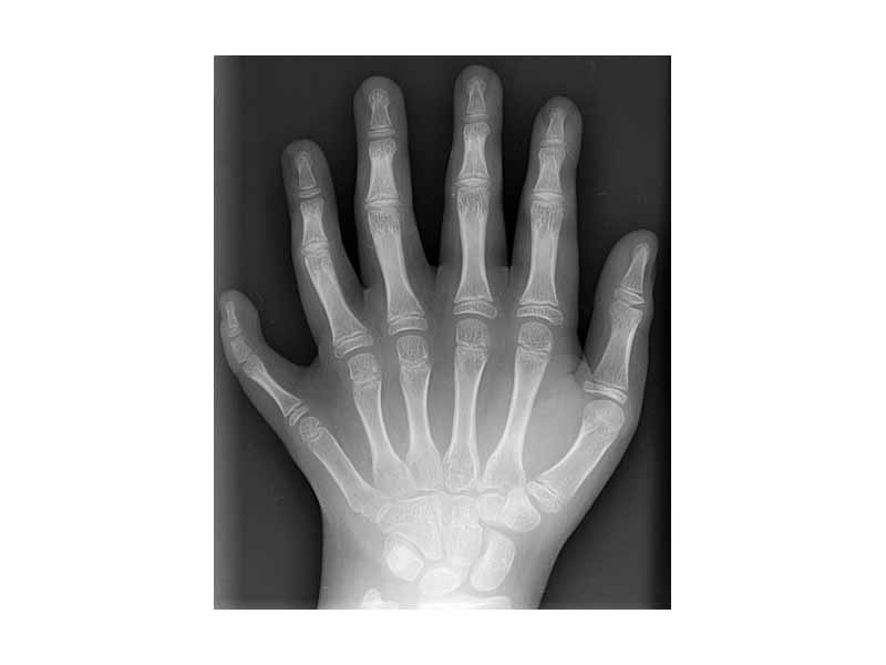 clipart xray - photo #38