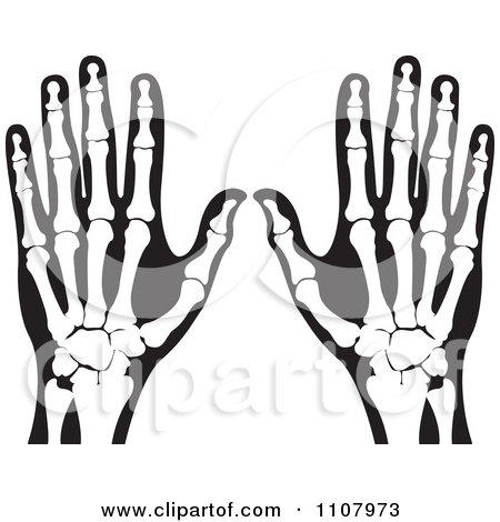 Clip Art X-ray Clipart hands x ray clipart kid royalty free stock illustrations of xrays by lal perera page 1