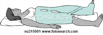 Clipart   Woman Lying Down Encased In A 1 1 2 Hip Spica Immobilization