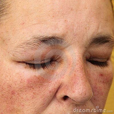 More Similar Stock Images Of   Swollen Eyes And Face For Allergy