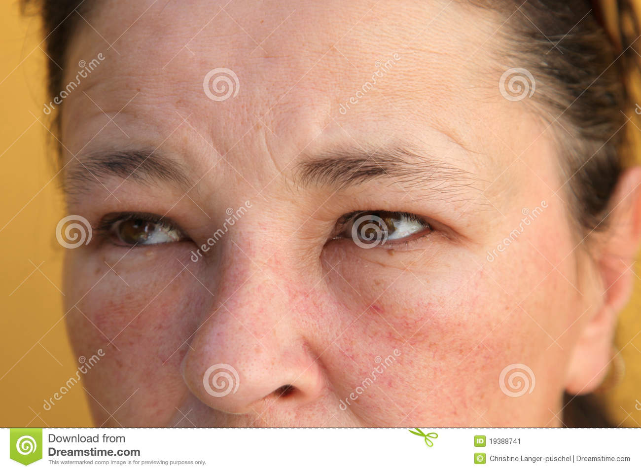 Stock Image  Allergies   Swollen Eyes And Face