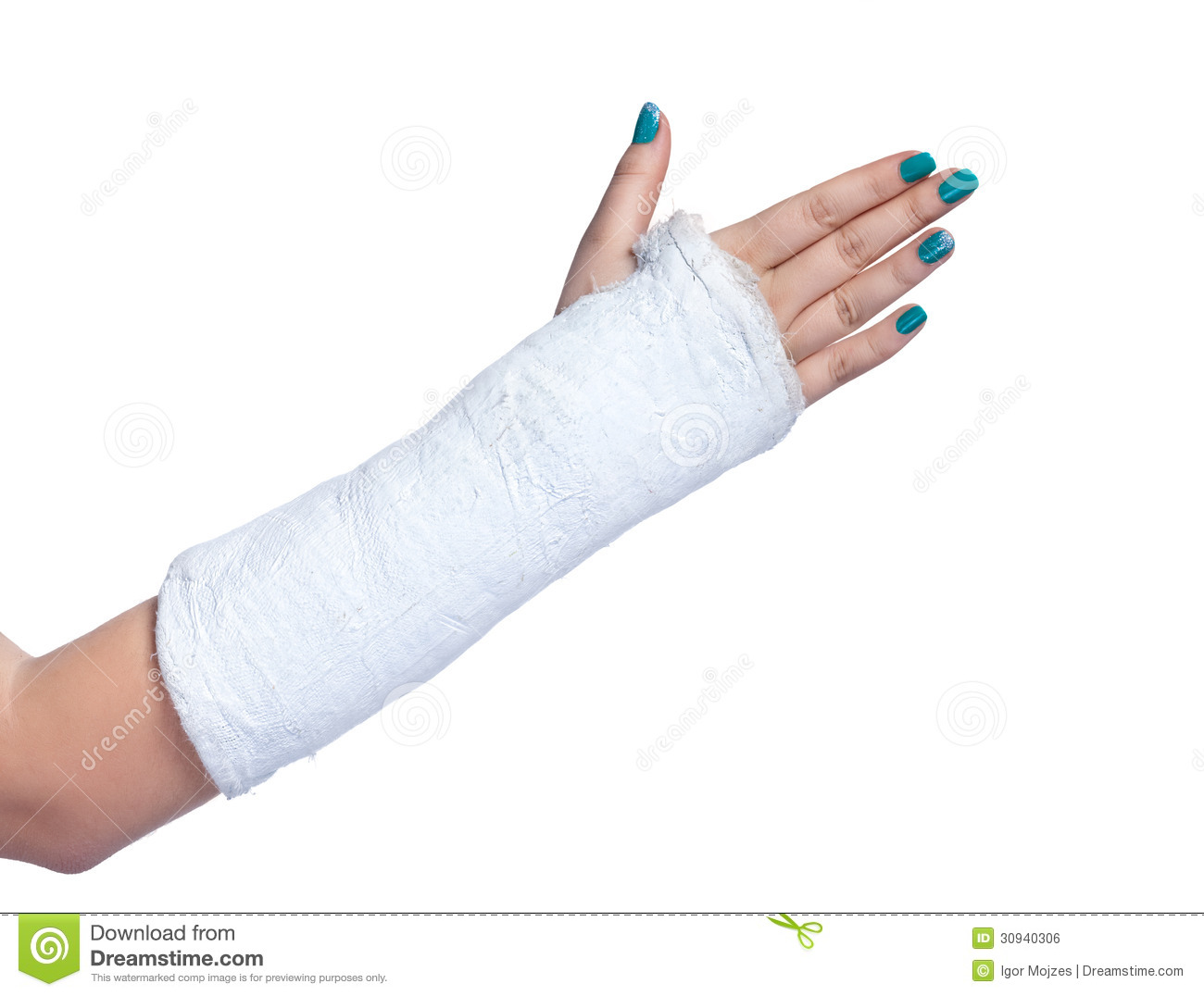 Full Body Cast Clip Art Arm In A Plaster Cast On A