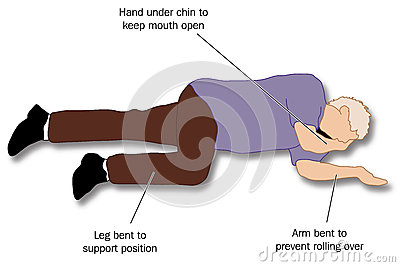 Patient Placed In The Recovery Position To Ensure A Clear Airway For