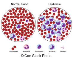 Leukemic Versus Normal Blood Vectors Illustration
