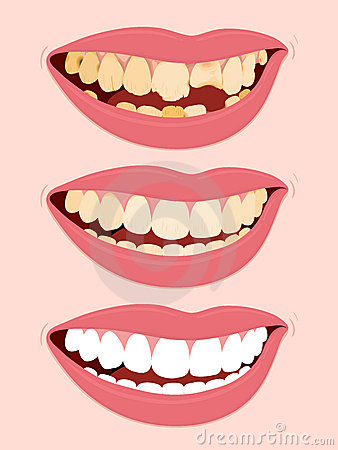 Tooth Decay Clipart - Clipart Suggest