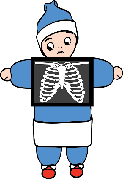 Go Back   Gallery For   X Ray Clipart For Kids