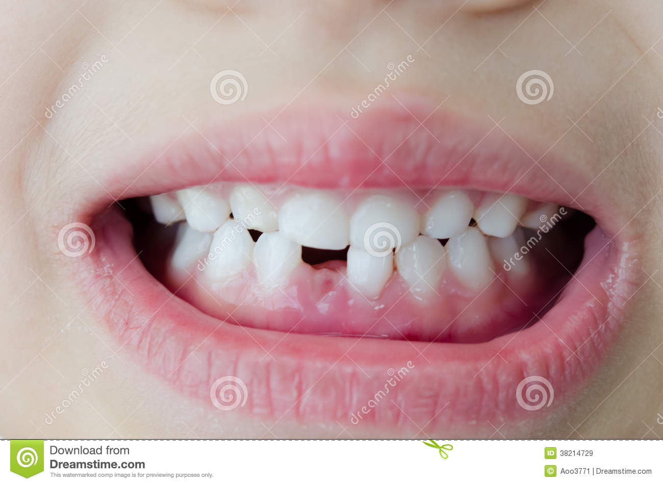 Child Broken Tooth Royalty Free Stock Images   Image  38214729